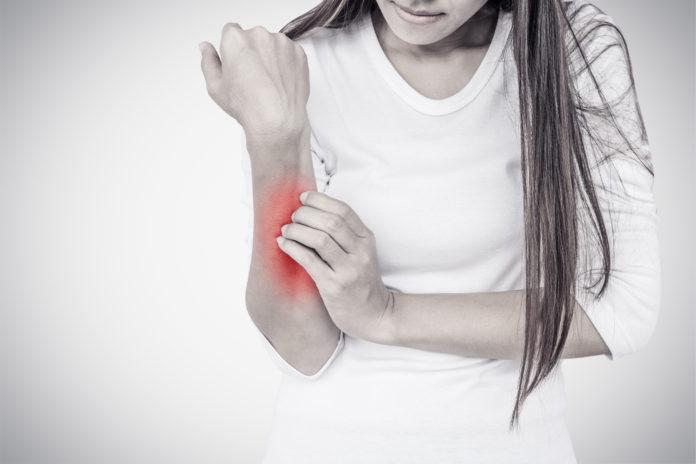 Dermatite da contatto: una review ne studia la relazione con vari allergeni