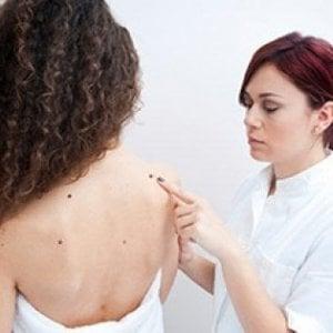 Melanoma, così le cellule adipose aiutano il cancro a diffondersi nel corpo